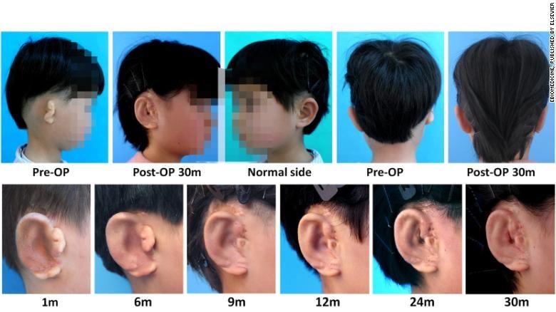 Выращеные в напечатанных 3D-формах ушные раковины, успешно привиты 5 детям